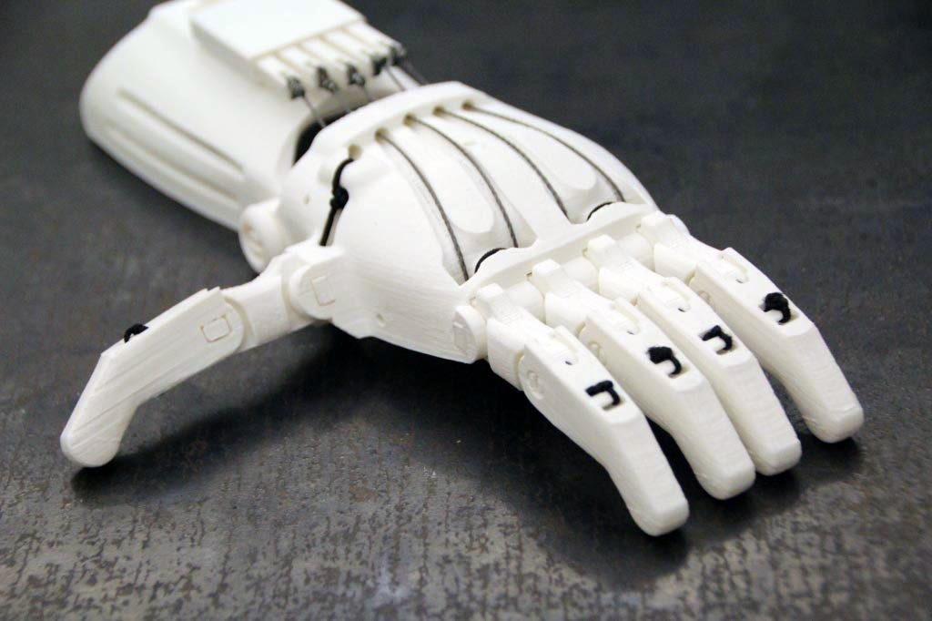 3D+Printed+Prosthetic